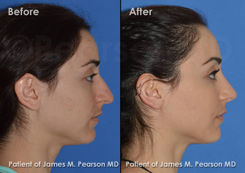 Beverly Hills Rhinoplasty Photos