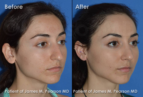 Los Angeles Rhinoplasty Photos