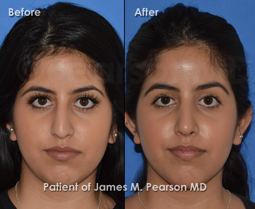 Torrance Rhinoplasty photos