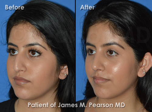 Manhattan Beach Rhinoplasty photos