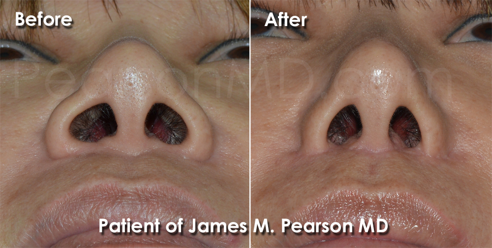 Pearson Rhinoplasty photos