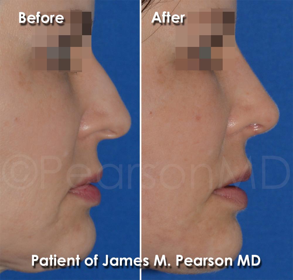 Dr. Pearson Rhinoplasty
