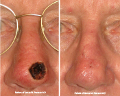 skin cancer repair before and after photo