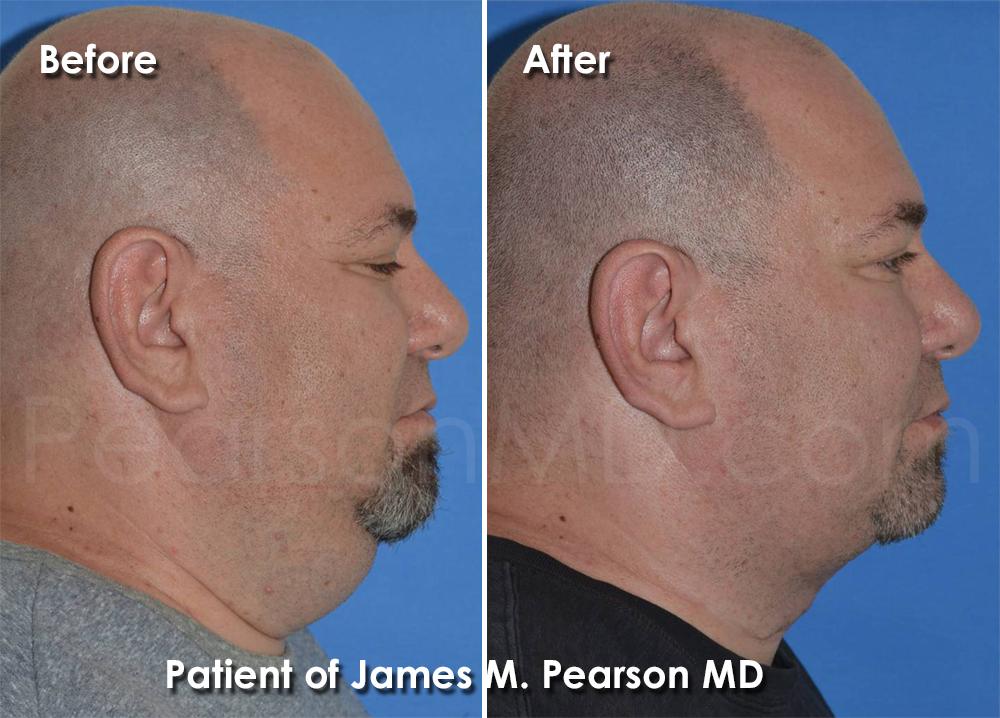 Pearson Submentoplasty