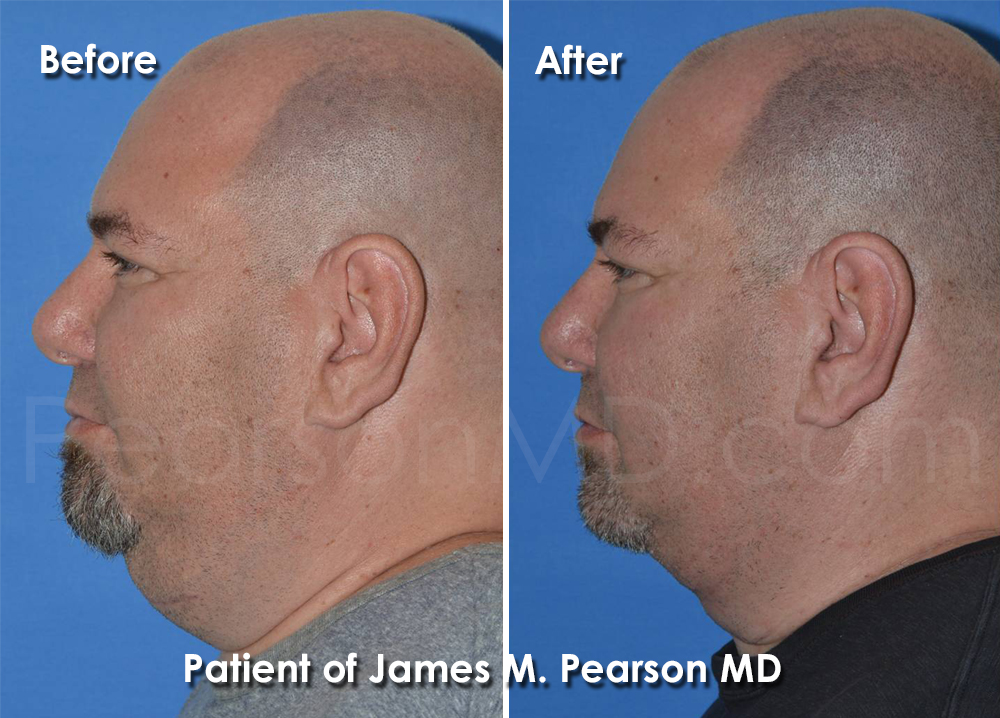 Pearson Plastic Surgery of the Neck